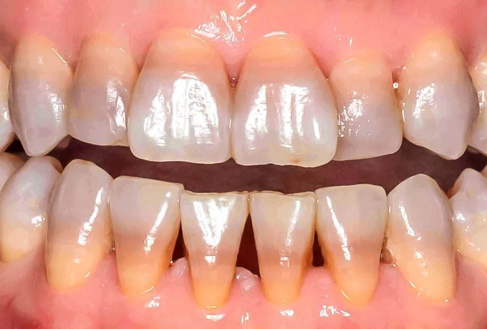 Will taking antibiotics make the colour of your teeth darker?