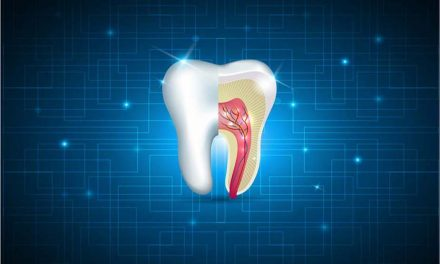 10 myths and facts about root canals