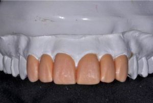 Wax-up teeth